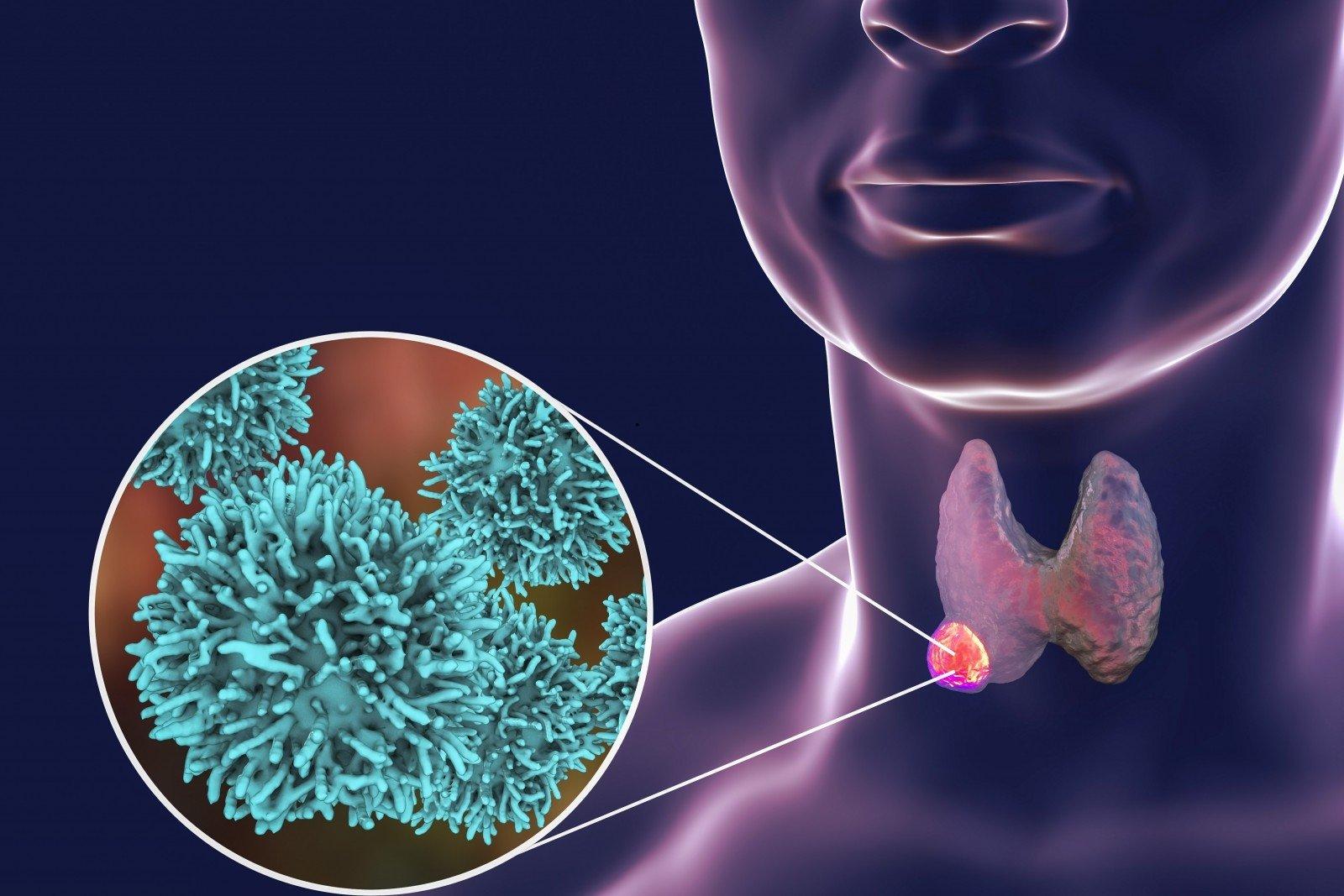 Klastinga liga atsėlina netikėtai - Temos - Ligos, sveikata, vaistai - taf.lt