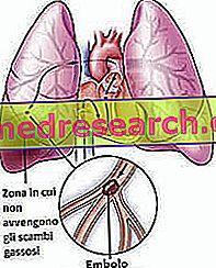 hipertenzija, nuo ko vartojami vaistai hipertenzijos refliuksas