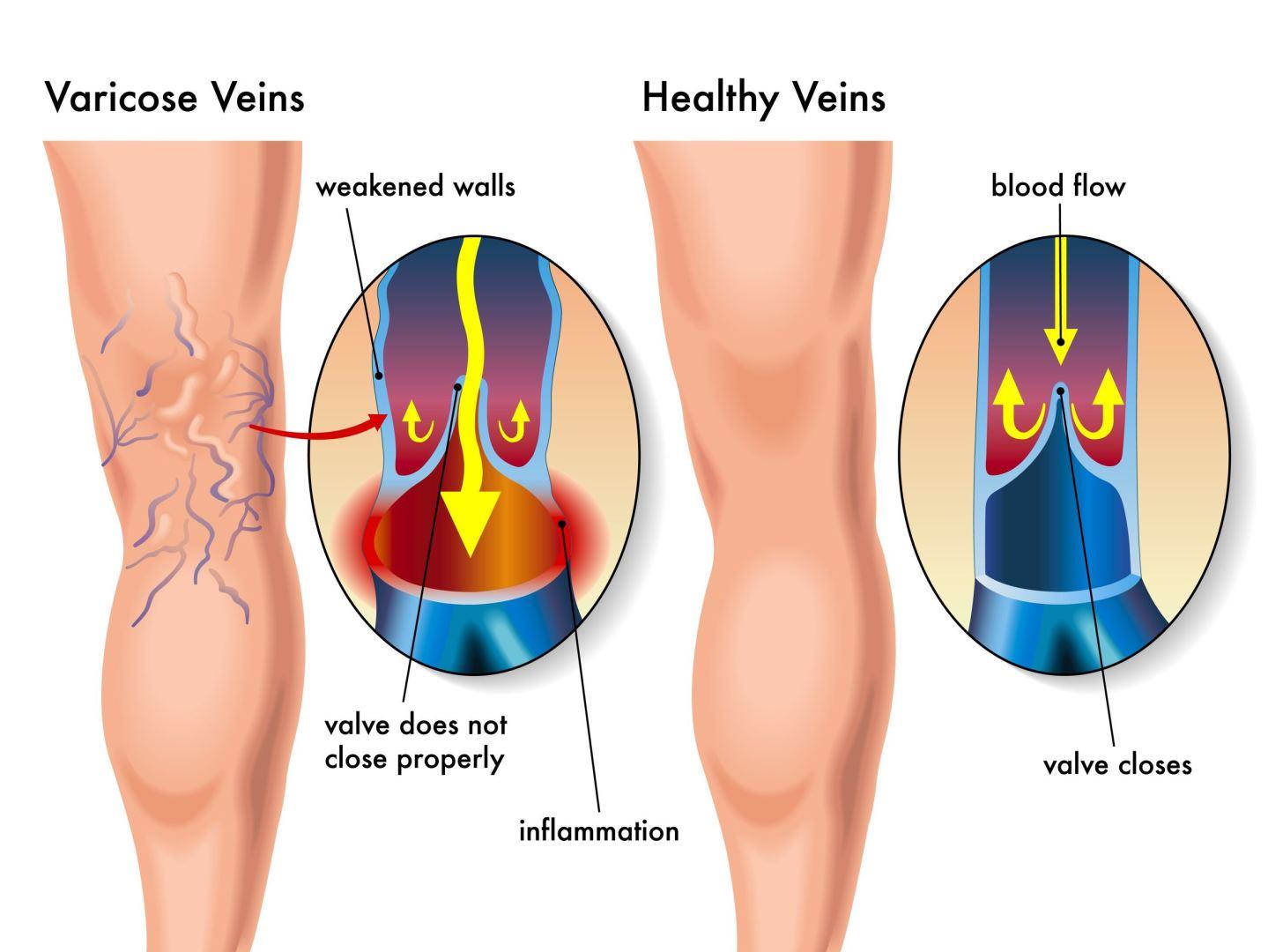 venų varikozė ir hipertenzija