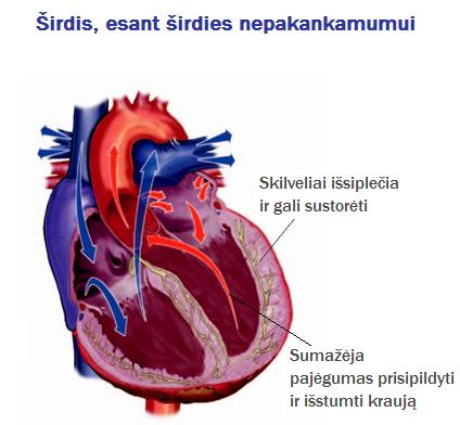 stazinis širdies nepakankamumas ir visuomenės sveikata sporto salės treniruočių programa sergant hipertenzija