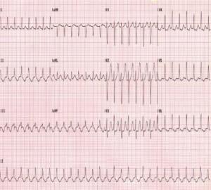 širdies plakimas nėštumo metu moterų sveikata naujos širdies sveikatos gairės vyrams