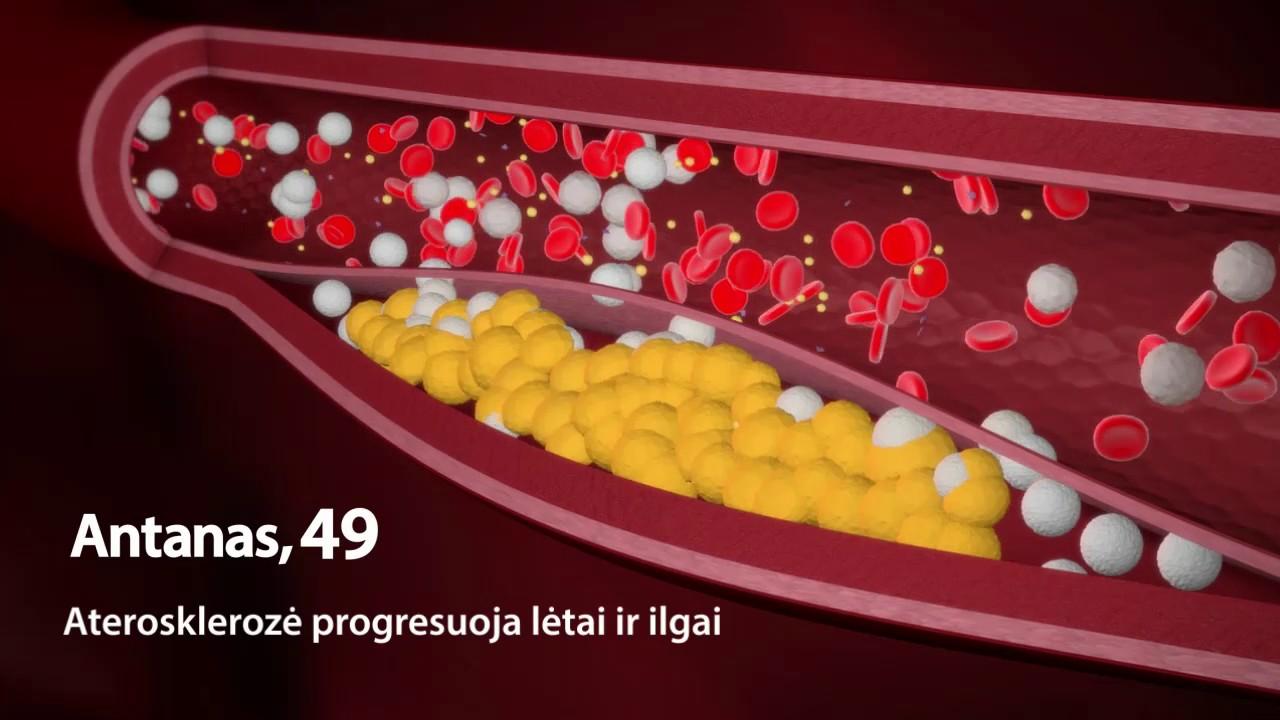 kokie pojūčiai sergant hipertenzija