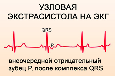 Kaip greitai padidinti spaudimą namuose: tonikas, procedūras - Hipertenzija November