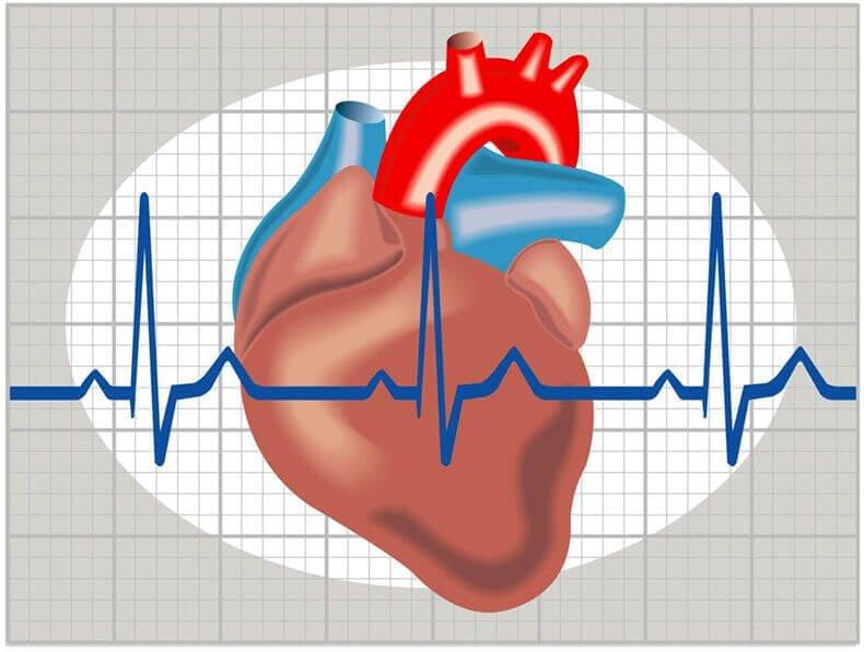 aritmija su hipertenzija liaudies gynimo