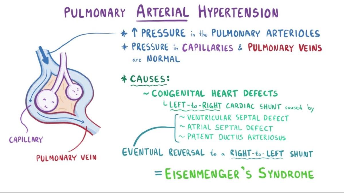 frotinė hipertenzija paveikti priepuolio sveikatą širdies psichologija