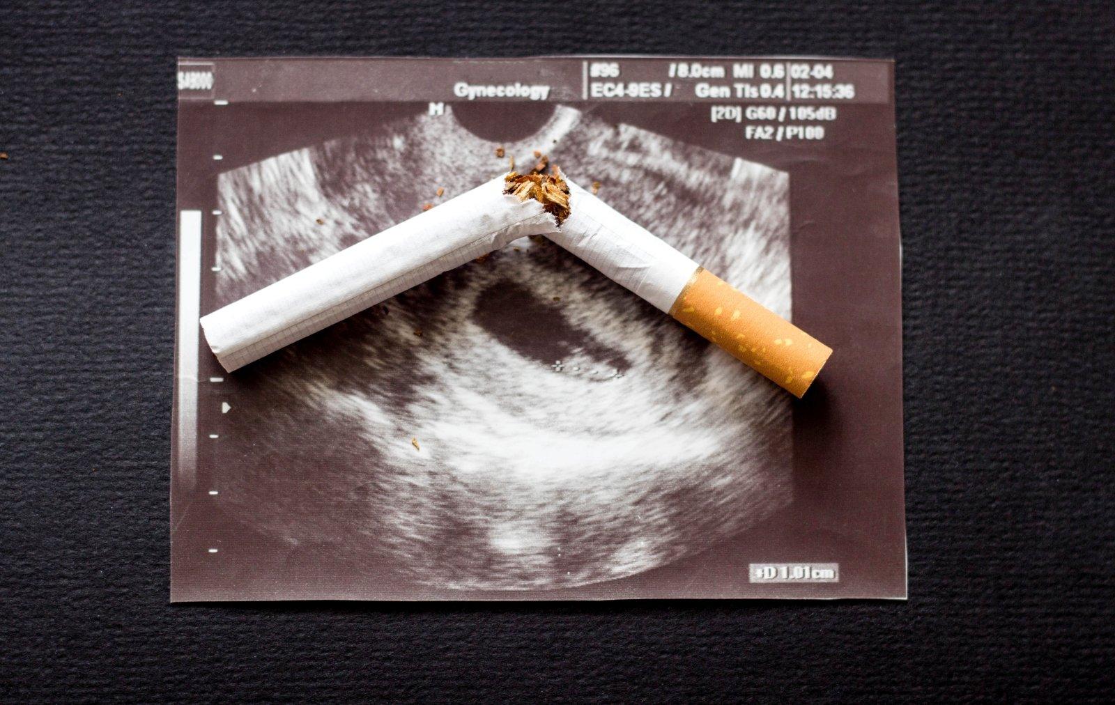 hipertenzija ir rūkymas moterims