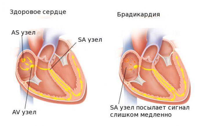 1 laipsnio hipertenzija, jie nuvežti į policiją pranajama sergant hipertenzija