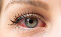 hipertenzija akyse zigzagais