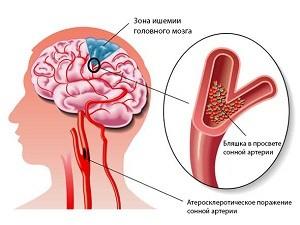 Smegenų smegenų sukrėtimas