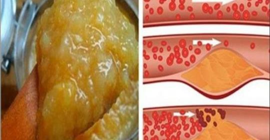 hipertenzija maistas su juo