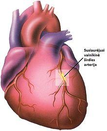 Koronarinė širdies liga