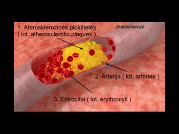 sergant hipertenzija kaip gydyti peršalimą