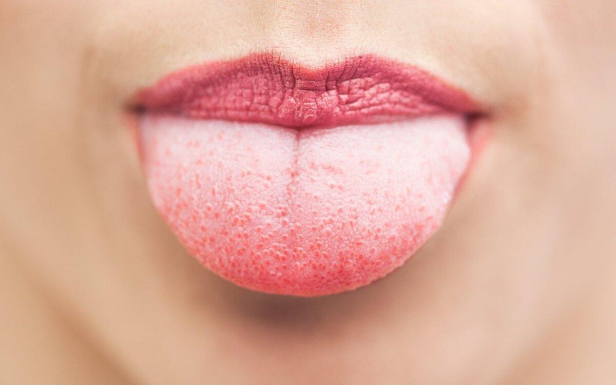 Vitaminas B svarbiausi faktai ir jo stokos simptomai - taf.lt