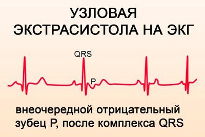 ar galima vartoti bellataminal nuo hipertenzijos kokie gėrimai sergant hipertenzija