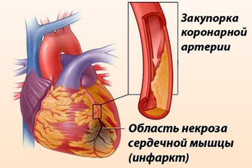 vaistinės tinktūros nuo hipertenzijos