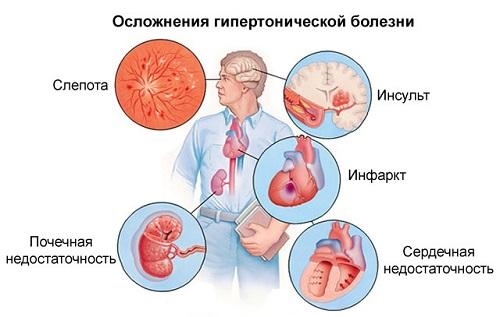 hipertenzijos apkrova 2 laipsniai