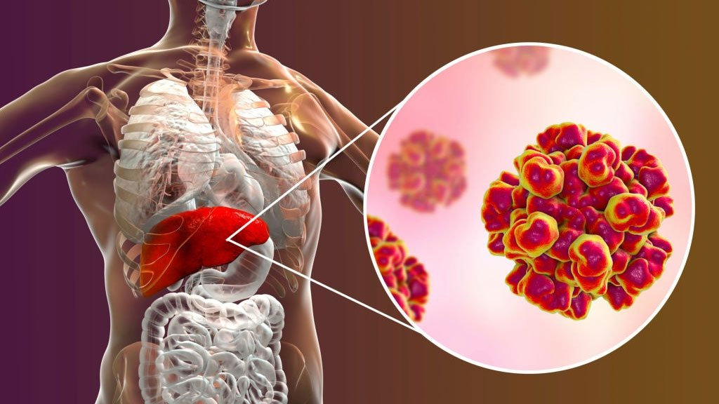 Autoimuninis hepatitas