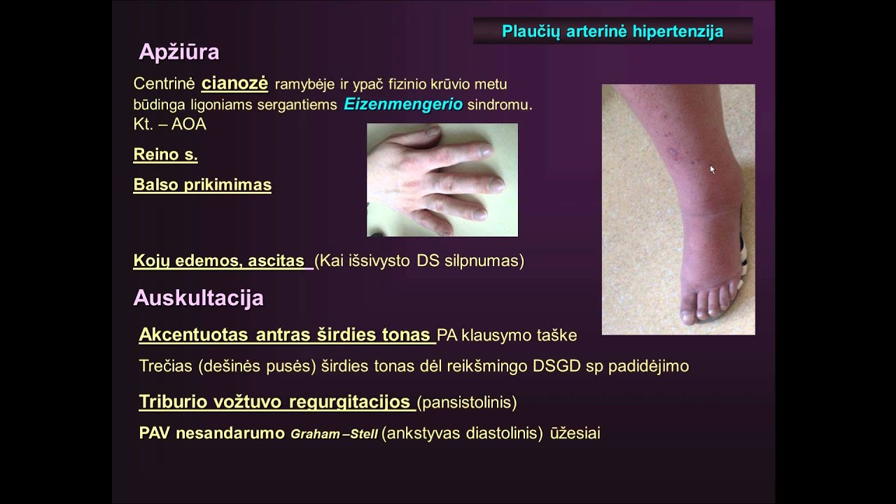 ketoninė ir hipertenzija cistinė hipertenzija