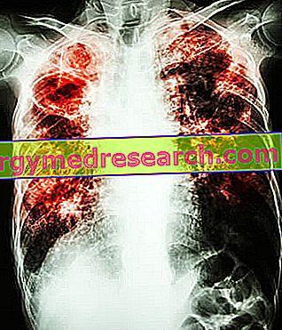 hipertenzija plaučių ar širdies liga