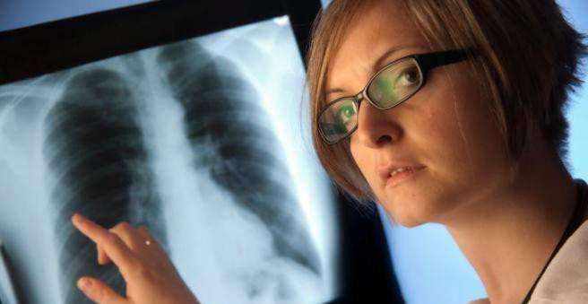 Plaučių vėžiu sergama dažniausiai