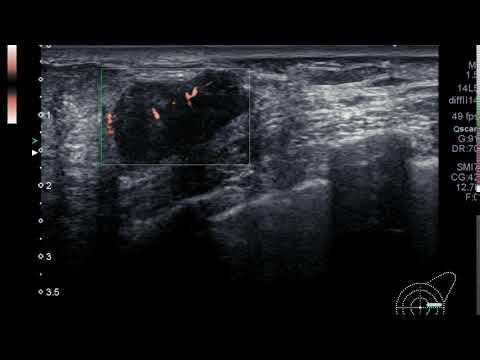 hipertenzija su TBI inkstų ir širdies hipertenzija