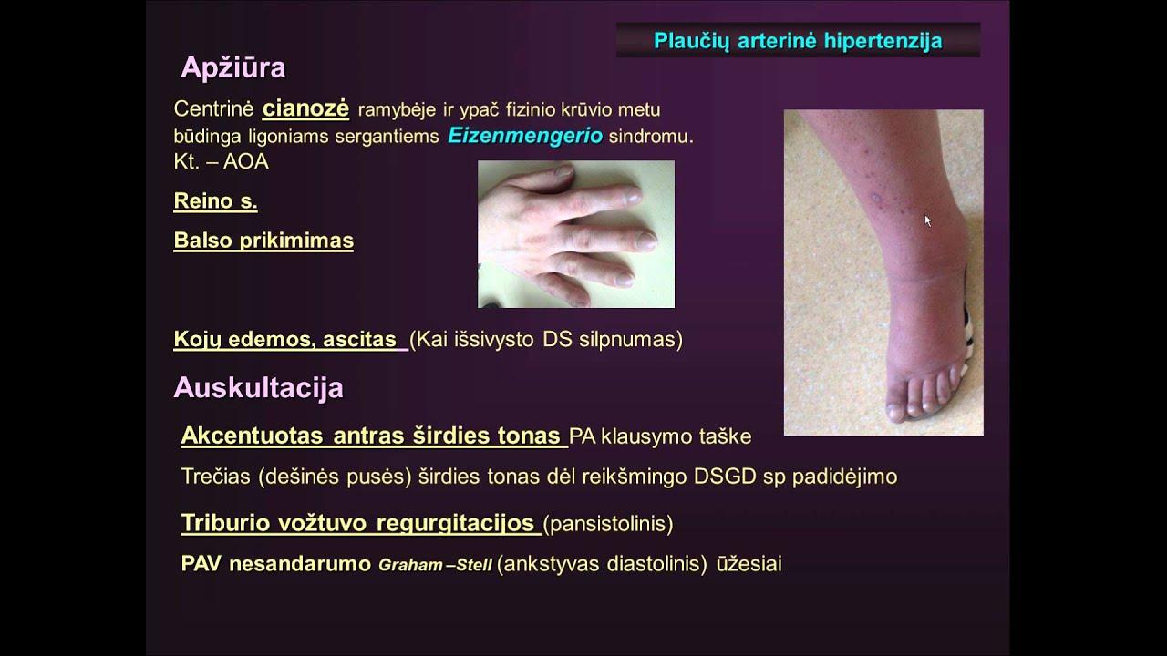 plaučių hipertenzijos priežastys