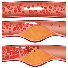 Geriausias vaistas, skirtas valyti kraujagysles nuo cholesterolio