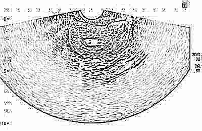 Ultragarso procedūra